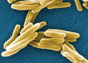 Mycobacterium tuberculosis, causador da tuberculose