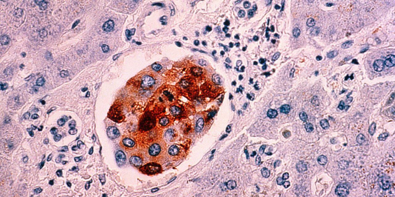 Pesquisadores belgas identificam células que iniciam a formação de tumores